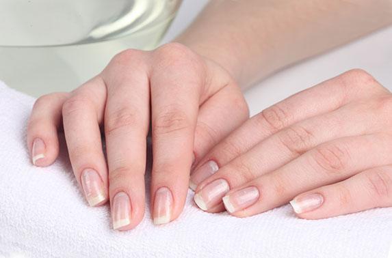 Причины возникновения белых пятен на ногтях