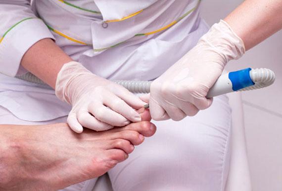 профессиональное лечение мазолей на ногах