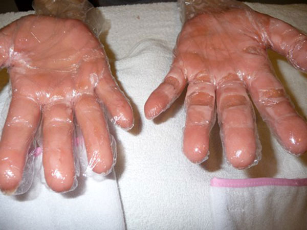 Надеваем резиновые перчатки